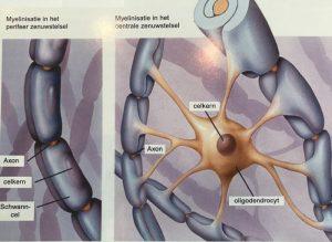 Over het mysterie MS en myeleine en witte stof